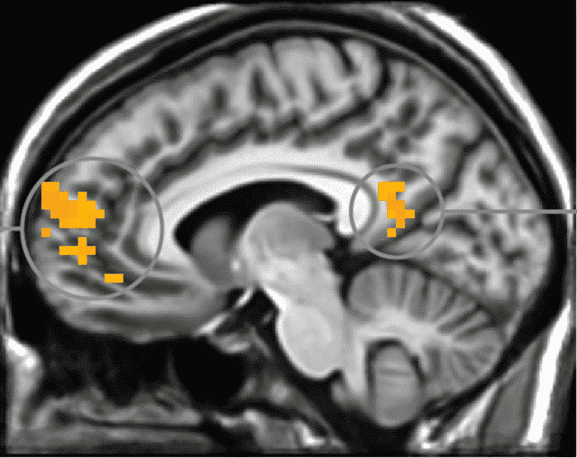 MRI Shows Our Brain Shuts Down When We See Security Warnings on Computers