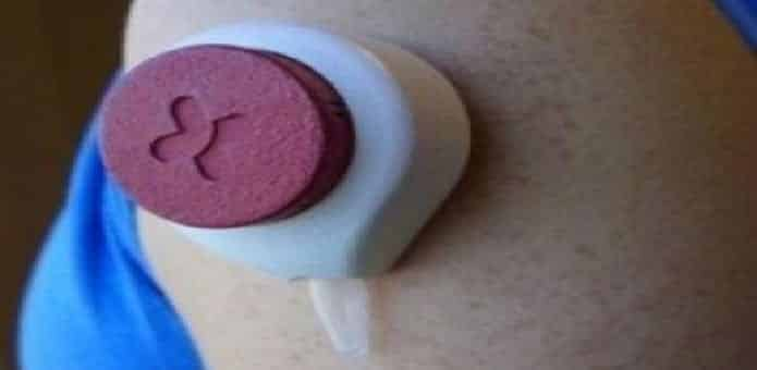 A new Blood collection device will replace the painful needles
