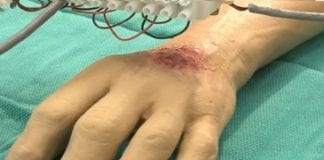 How skin printing could revolutionize burn treatment