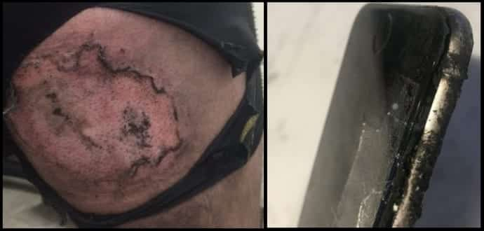 iPhone 'explodes' to cause third-degree burns on this bike rider