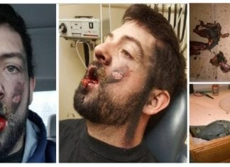 E-cig explodes in an Idaho man's face, loses 7 teeth and suffers second degree burns