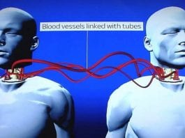 World's first head transplant to happen early next year