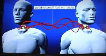 The world's first head transplant will be carried out on a Chinese patient